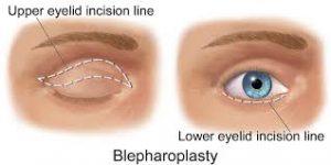 Eyecorrectionfig1