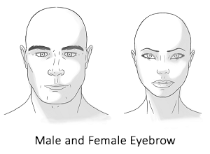 eyebrowliftfig1