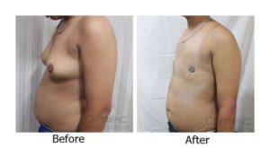 top-surgery-india-delhi-14-1