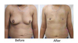 top-surgery-india-delhi-14-2