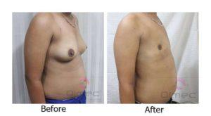 top-surgery-india-delhi-14-3