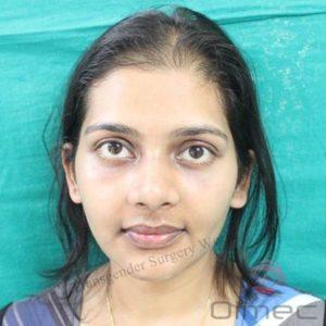 facial-feminization-surgery-transgenders05