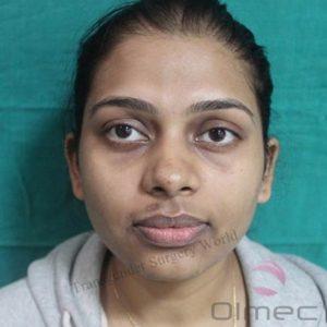 facial-feminization-surgery-transgenders06