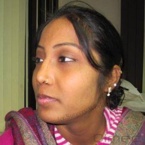 facial-feminization-surgery-transgenders07