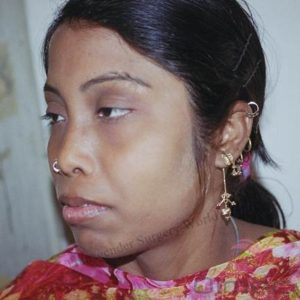 facial-feminization-surgery-transgenders08