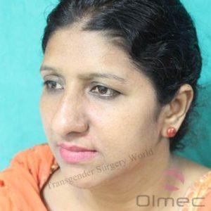 facial-feminization-surgery-transgenders10