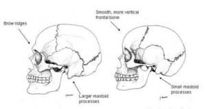 https://www.transgendersurgeryworld.com/wp-content/uploads/2017/01/forehead-reconstruction.jpg