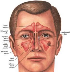 forehead-reconstruction2