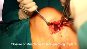 breast-augmentation-steps-19