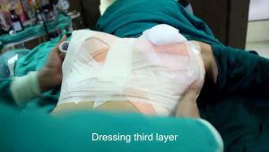 breast-augmentation-steps-25