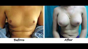 breast-augmentation-steps-26
