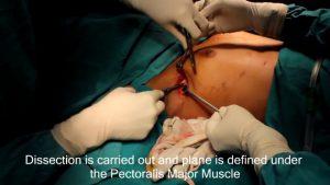 breast-augmentation-steps-3
