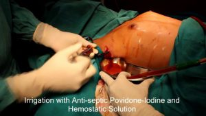 breast-augmentation-steps-8